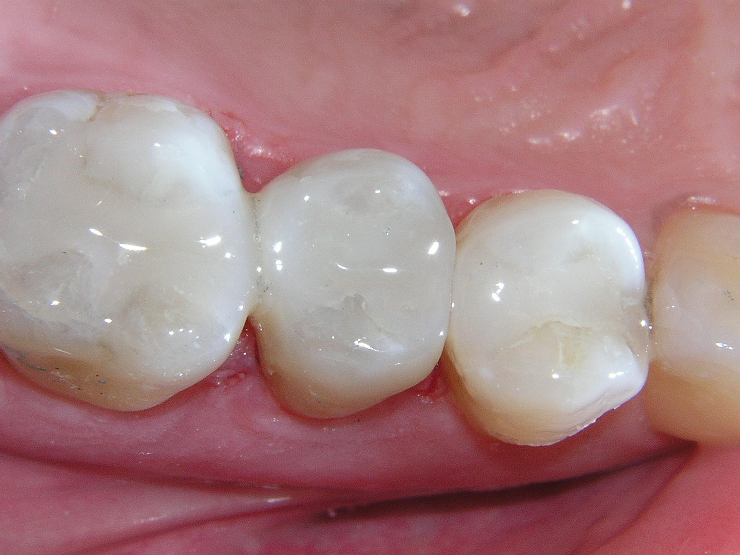 دندانهای ترمیمشده با کامپوزیت