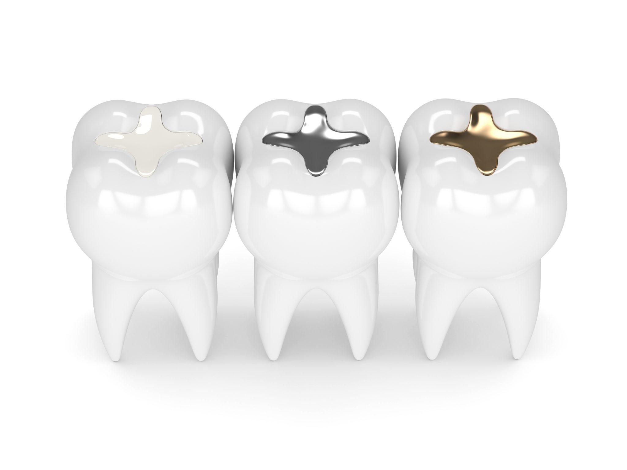 مقایسه ترمیم دندان با استفاده از کامپوزیت، آمالگام و طلا (به ترتیب از چپ به راست)