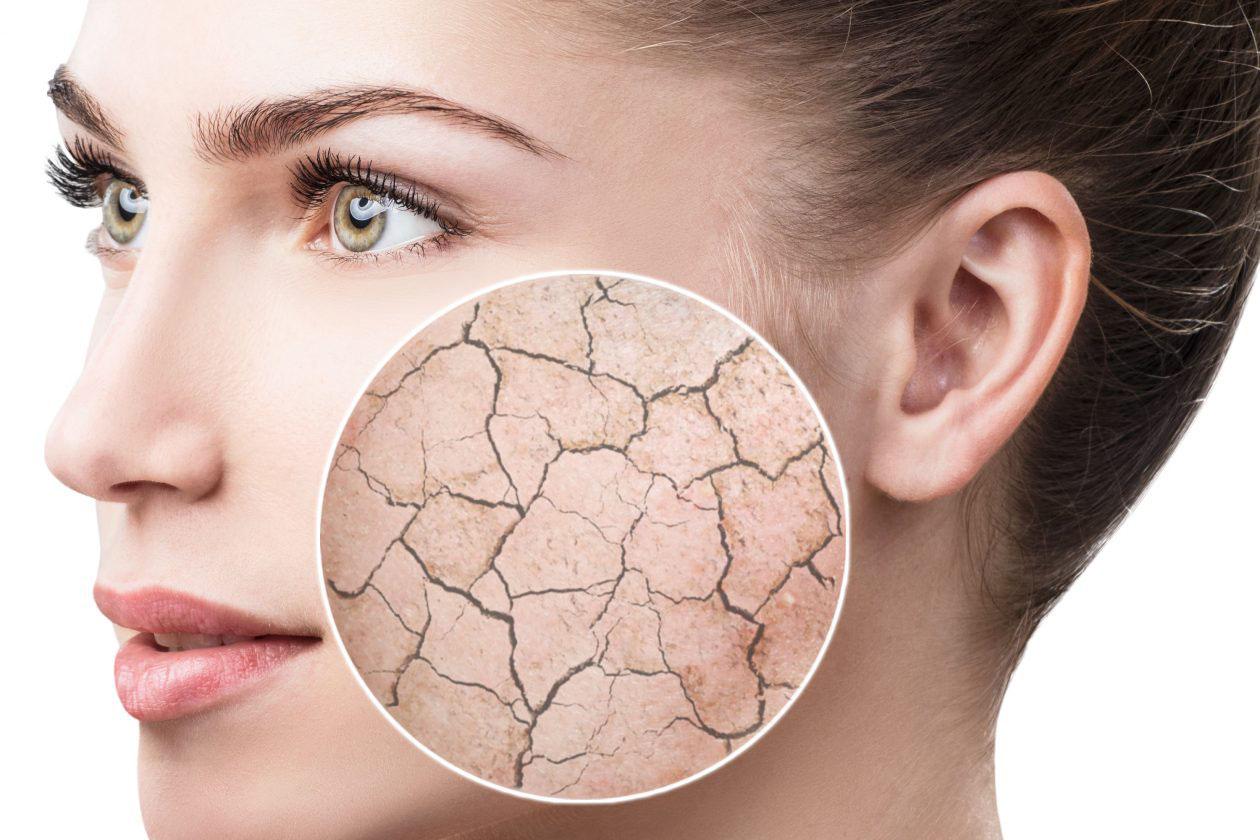 مرطوب کننده صورت و بدن و خشکی پوست