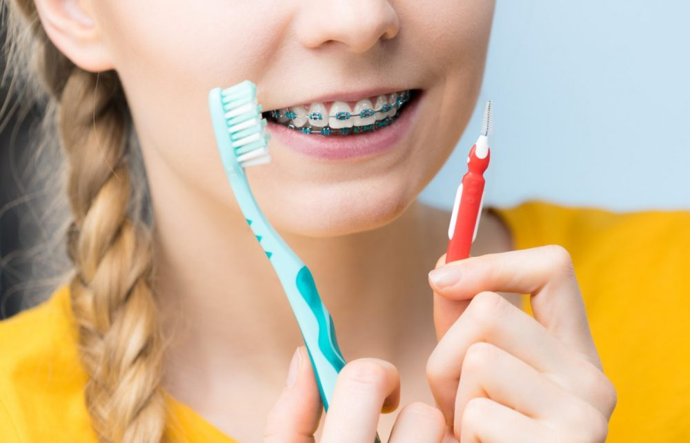 انواع مسواک - مسواک بین دندانی برای افراد با ارتودنسی